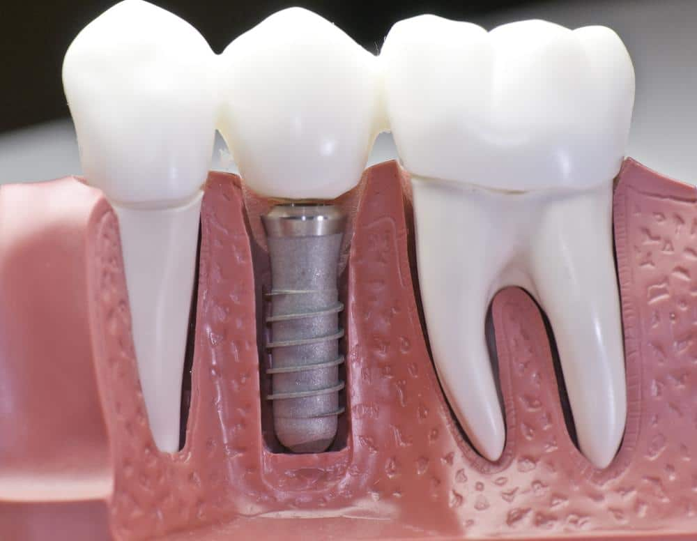 dental-implants-mt-pleasant-sc